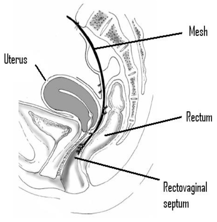 Diagram showing mesh in position after surgery
