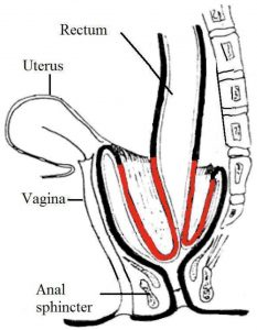 Diagram showing the rectal wall prolapsing on itself internally. This can progress to an external prolapse