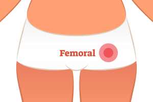 Femoral Hernia treatment in Exeter for Herniae with Miss Patricia Boorman Colorectal Consultant Surgeon